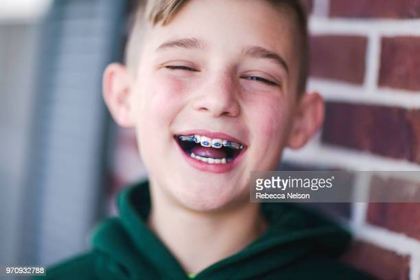 Laughing boy with braces on his teeth