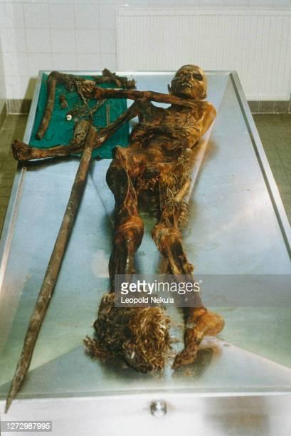 Le corps momifié découvert sur le glacier Similaun à l'institut médico-légal d'Innsbruck.
