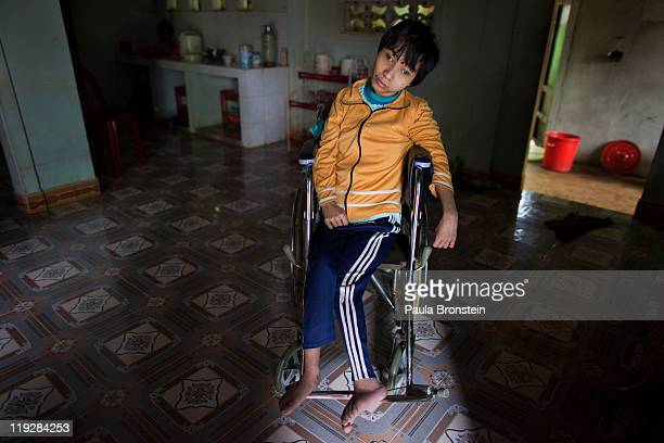 Le Thi Dat suffers from Cerebral Palsy which is common with Agent Orange victims spends all day doing nothing at home March 8 in Cam Lo in Quang Tri...