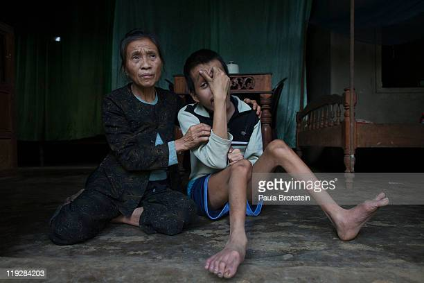 Le Thi Mit sits with her one of her two handicaped sons Nguyen VanTrong at their home on March 7 in Cam Lo Quang Tri district Vietnam his handicap...