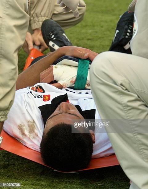 le troisquart centre toulousain Clément Poitrenaud est allongé sur une civière après avoir été blessé au bras le 15 septembre 2001 à Toulouse lors de...