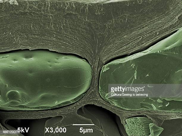 leaf, x3000 magnification - microscopio elettronico a scansione foto e immagini stock