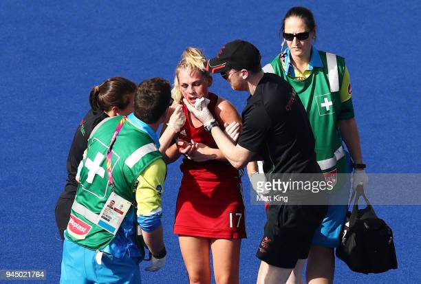 Leah Wilkinson of Wales is assisted by medical staff after sustaining an injury and bleeding heavily during Women's Placing 910 Hockey match between...