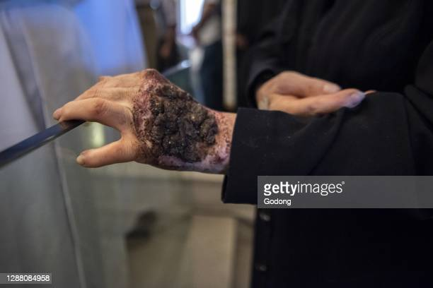 Lebanese maronite faithful Hilani Abi Khalil, who was healed from a cyst by St Charbel, carries the wounds of Jesus on her head, hands and feet.