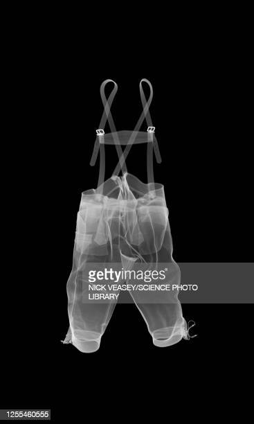 lederhosen shorts and braces, x-ray - x ray image stock pictures, royalty-free photos & images