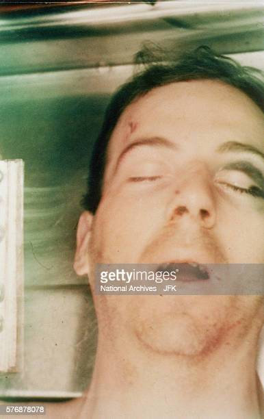 Lee Harvey Oswald postautopsy viewed through body bag