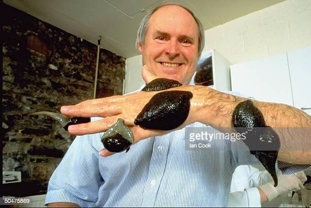 Leech farmer Roy Sawyer showing off leechcovered arm at Biopharm breeding ranch WALES