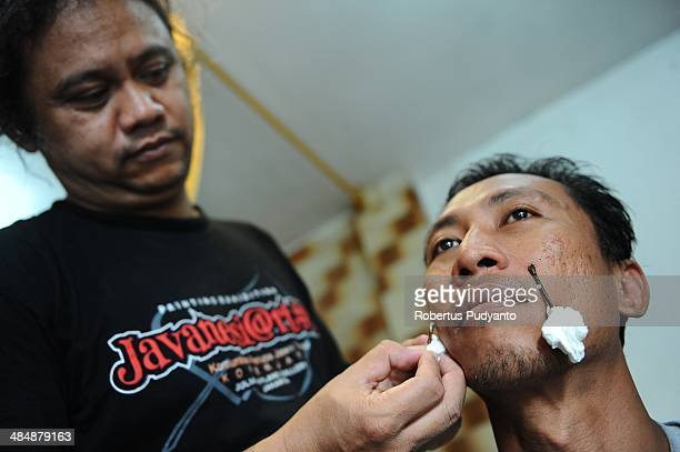 Leech therapist Asep Nugraha treats a patients with leech in his clinic on April 15 2014 in Surabaya Indonesia Hirudo medicinalis is one of the...