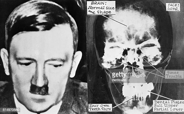 One of the last pictures taken of Adolf Hitler before his suicide Right XRay of Hitler's head taken from files of his personal doctorsHe had normal...