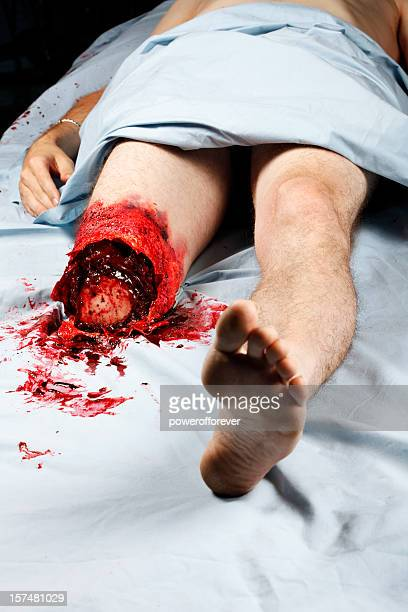 leg amputation - bloody gore stock pictures, royalty-free photos & images