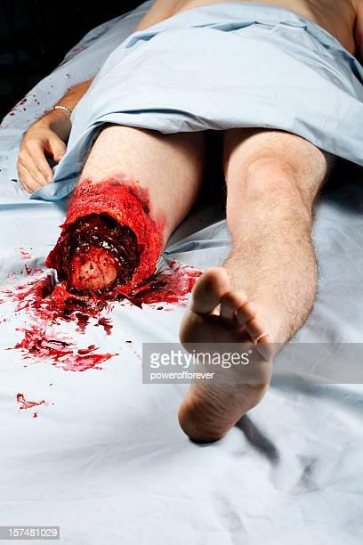 Bein Amputation