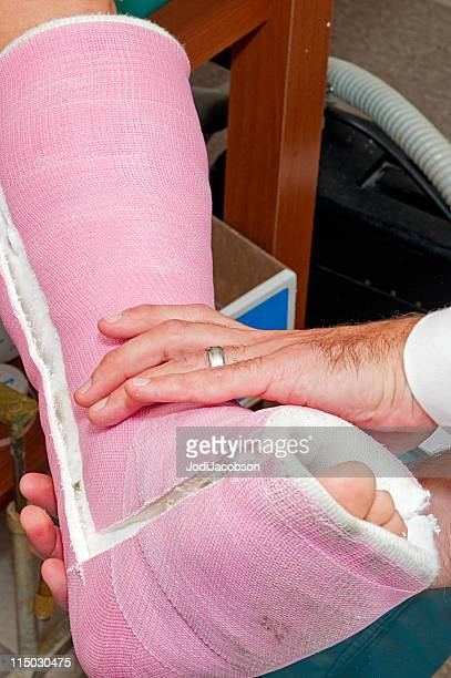 leg cast removal - cast colors for broken bones stock pictures, royalty-free photos & images