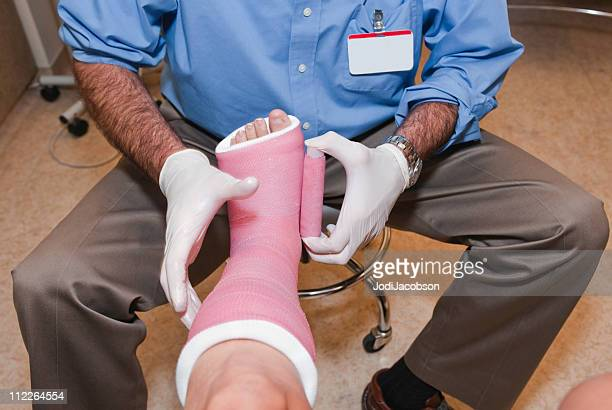 leg casting - cast colors for broken bones stock pictures, royalty-free photos & images
