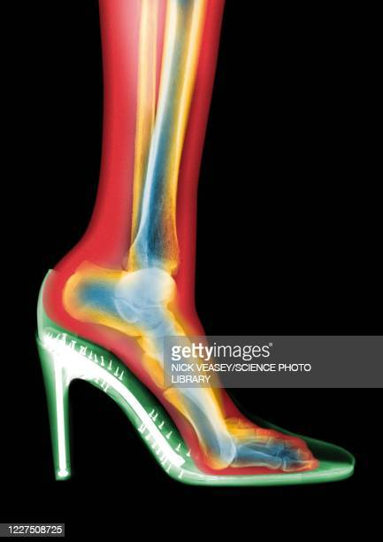 leg in stiletto shoe mri style, x-ray - womenswear stock pictures, royalty-free photos & images