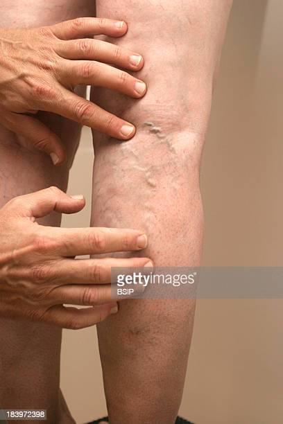 Leg Symptomatology In Elderly Person Phlebologist Phlebology Office