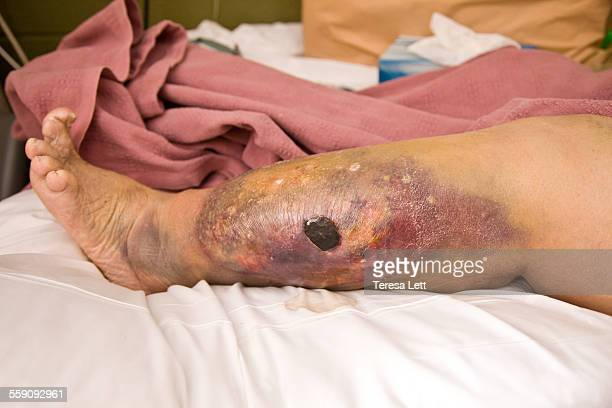 leg with large wound / bruise - big foot stock photos and pictures