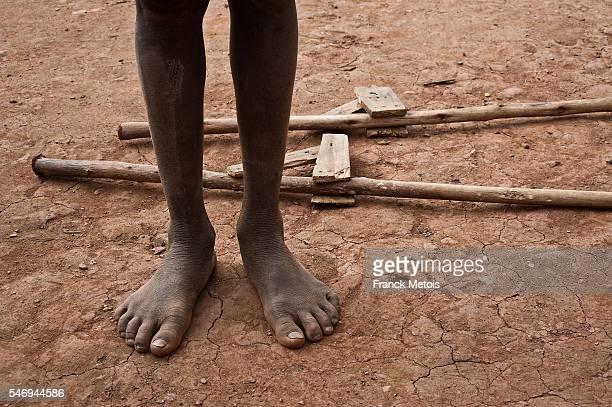 legs of a boy and stilts ( madagascar) - madagascar enfant photos et images de collection