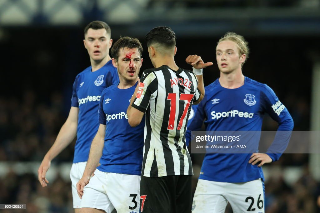 Leighton Baines of Everton suffers a facial injury during the Premier League match between Everton and Newcastle United at Goodison Park on April 23, 2018 in Liverpool, England.