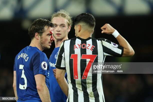 Leighton Baines of Everton suffers a facial injury during the Premier League match between Everton and Newcastle United at Goodison Park on April 23...