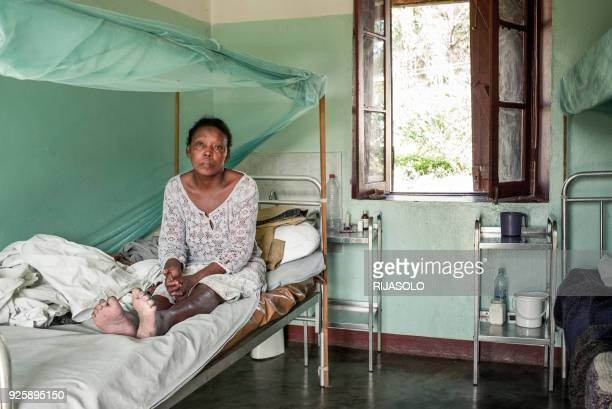 Leprosy diagnosed Vololonirina Ranorovelo poses for a photograph at the leprosy treatment center of Moramanga on February 28 2018 Infected by the...