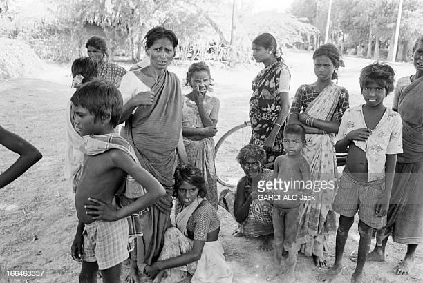 Leprosy. Le 14 avril 1981en Inde, les habitants d'un village ayant la lèpre, qu'ils ont eux-mêmes construit et où ils vivent en autarcie : des...