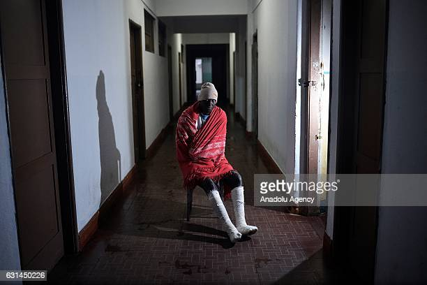 A leprosy patient poses at Curupaiti colony hospital in Jacarepagua district of Rio de Janeiro Brazil on June 8 2016 Hospital Colonia was abandoned...