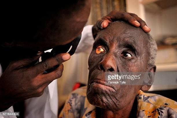 leprosy - lepra imagens e fotografias de stock