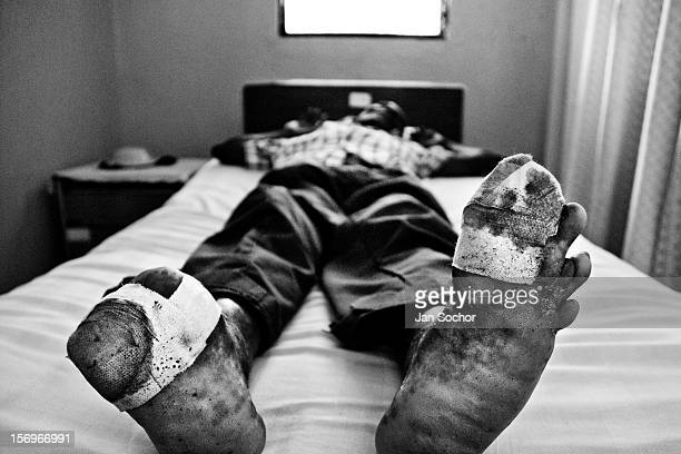 A leprous man waits for an ambulatory treatment in the Hopital Cardinal Leger in Leogane Haiti Although the effective treatment for leprosy appeared...
