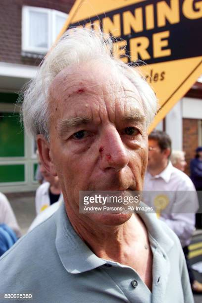 Liberal Democrat supporter Deryck Weatherall after a scuffle with Tory County Councill candidate Chris Capon in Hythe Kent at an election rally...