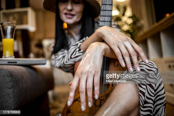 life with vitiligo - an older beautiful woman with a youthful appearance affected by vitiligo - an older black-haired woman with vitiligo lives a completely normal life, plays the guitar and enjoys her beautiful apartment - grimes musician stock pictures, royalty-free photos & images