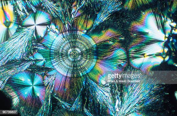 Light micrograph in uncrossed polarised light Magnification 100x