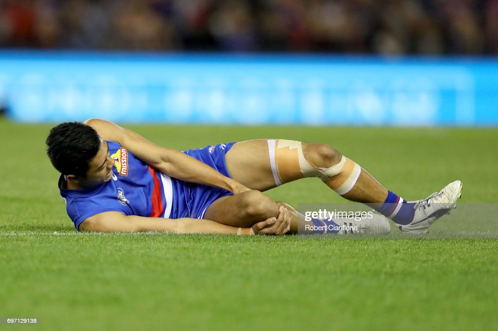 Lin Jong of the Bulldogs appears injured during the round 13 AFL match between the Western Bulldogs and the Melbourne Demons at Etihad Stadium on June 18, 2017 in Melbourne, Australia.