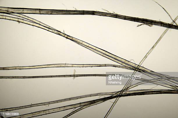 linen fibers micrograph