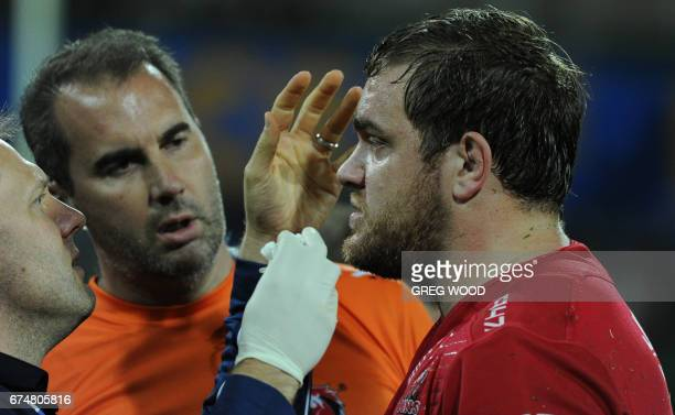 Lions Andries Ferreira receives treatment on the sidelines during the Super Rugby match between Australias Western Force and South Africas Lions in...