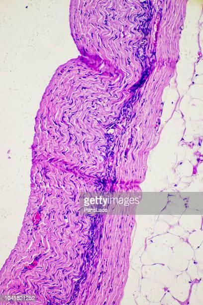 lipoma of human micrograph - lipoma fotografías e imágenes de stock