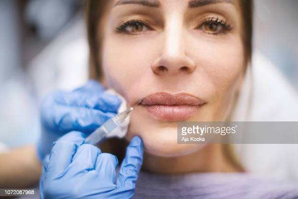 lips augmentation. - big lips stock photos and pictures