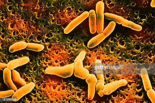 Listeria Denitrificans Sem X 15 000