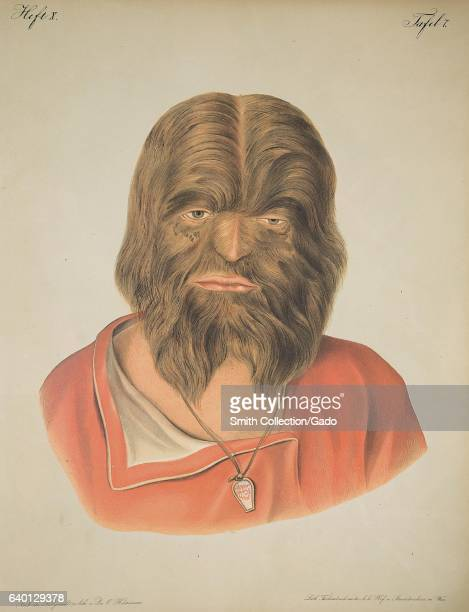 Lithograph showing a man whose face is covered in hair in Atlas der Hautkrankheiten by Ferdinand Ritter von Hebra 1856 Courtesy National Library of...