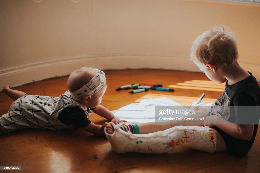 Little boy with broken leg : Stock Photo