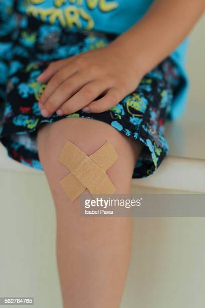 A little boy with two bandages on his knee