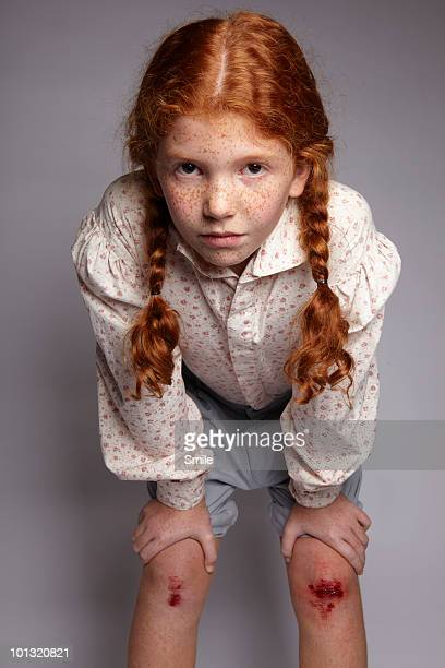little girl holding her grazed knees - leg wound stock pictures, royalty-free photos & images