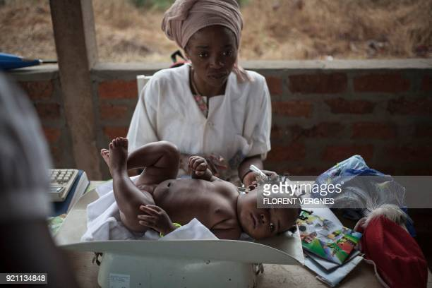 TOPSHOT A little girl is weighed by a nurse on February 14 2018 at the maternity in Boali which has no running water and only one doctor In Central...