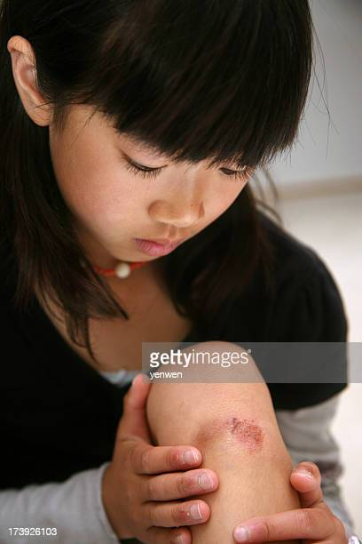 little girl knee injury - bruise stock pictures, royalty-free photos & images
