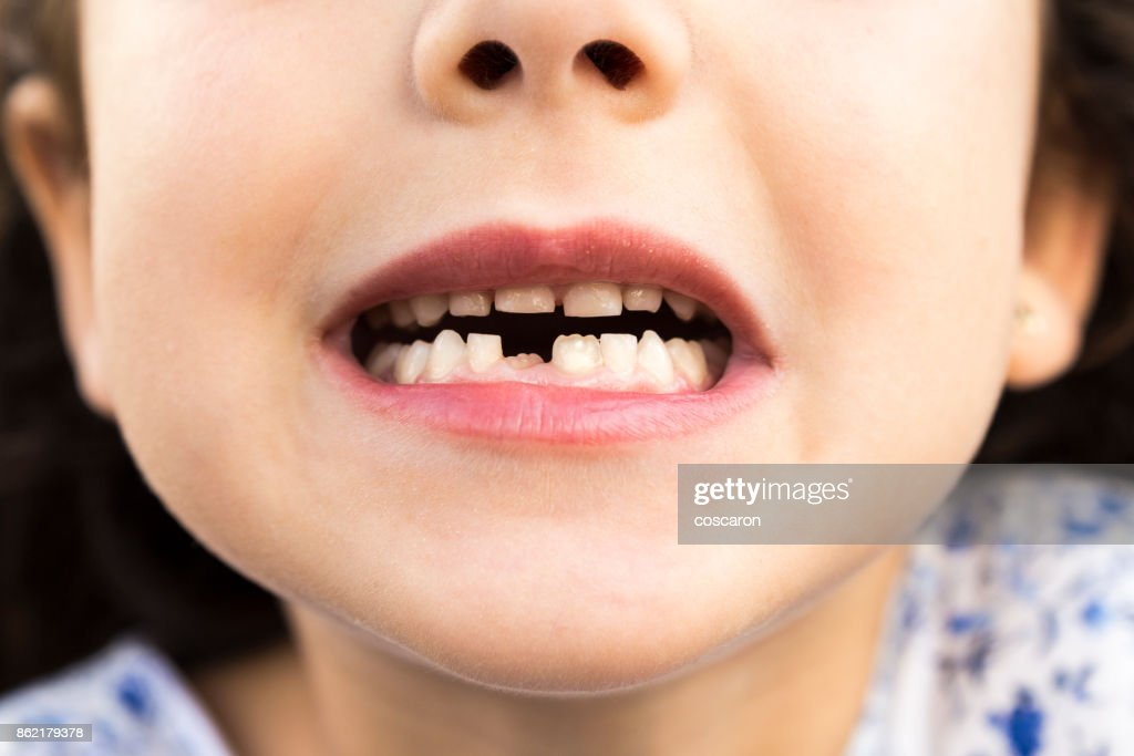 Little girl showing her teeth : Stock Photo