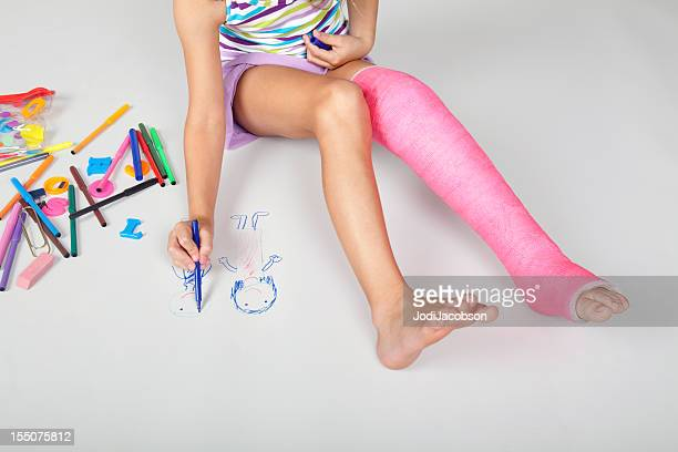 little girl with a full pink  leg cast keeping busy - cast colors for broken bones stock pictures, royalty-free photos & images