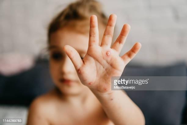little girl with chickenpox - esantema foto e immagini stock