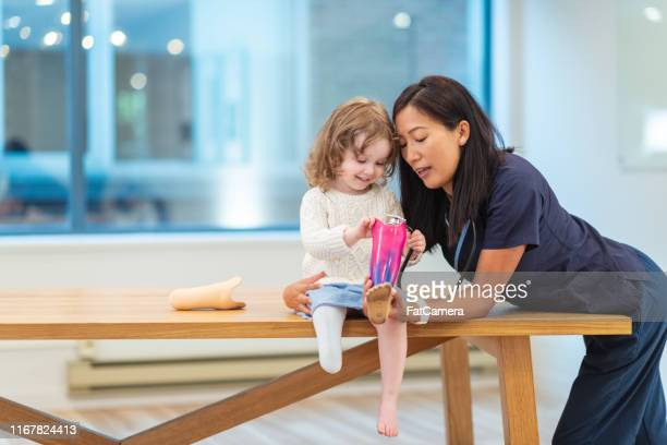 little girl with prosthetic leg at medical appointment - amputee girl stock pictures, royalty-free photos & images