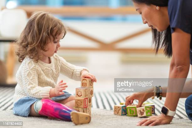 little girl with prosthetic leg at occupational therapy appointment - giochi per bambini foto e immagini stock