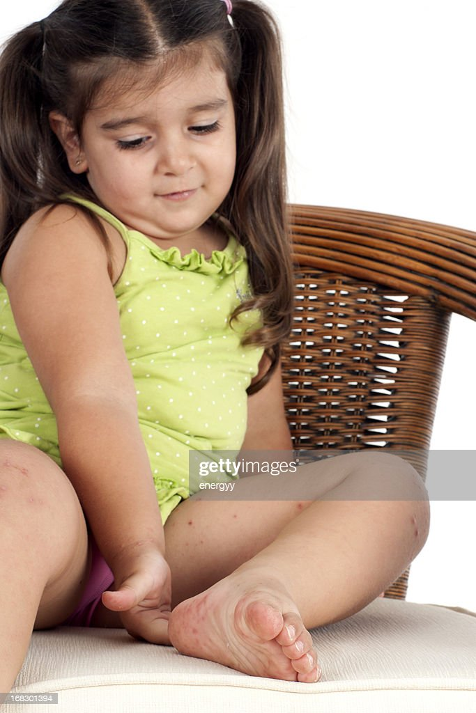 little girl's skin problems : Stock Photo