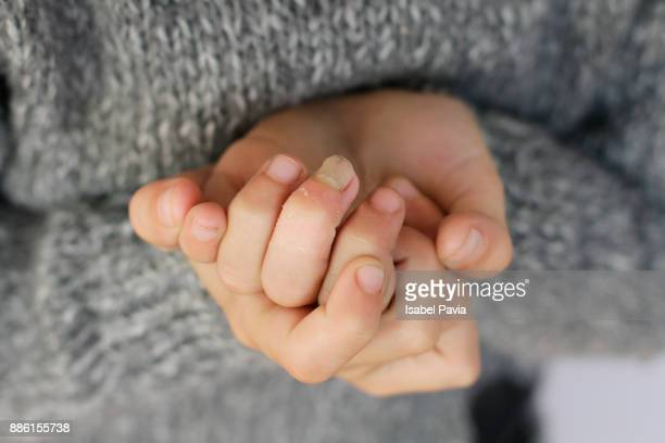 little hands with broken nail on middle finger - kid middle finger stock pictures, royalty-free photos & images